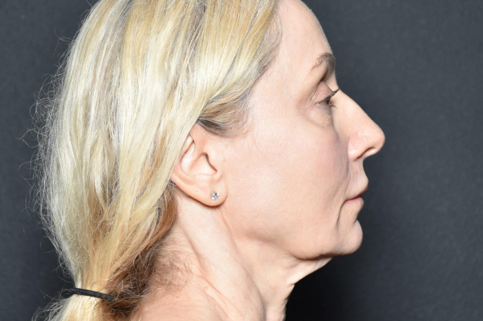 Facelift and Neck Lift – Case 1