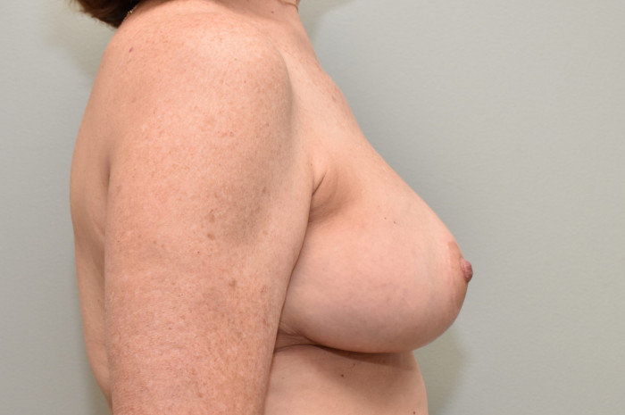 Breast Reduction/Reconstruction