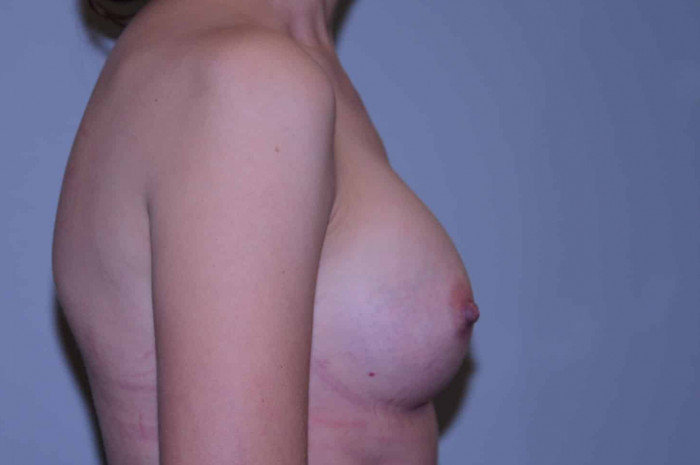 Breast Augmentation with Implants